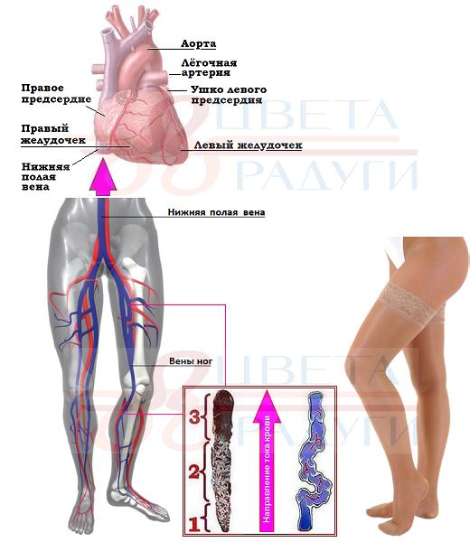 Проявление варикоза на ногах фото