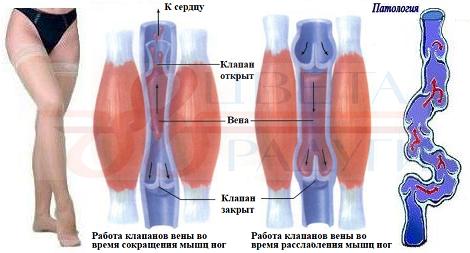 Варикоз в тазовой области лечение