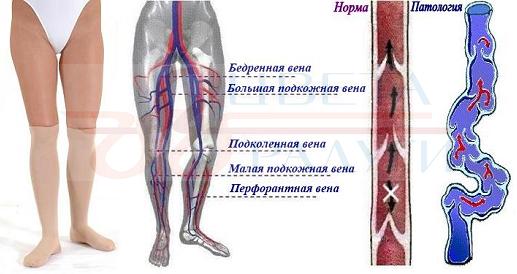 диагностике патологии вен